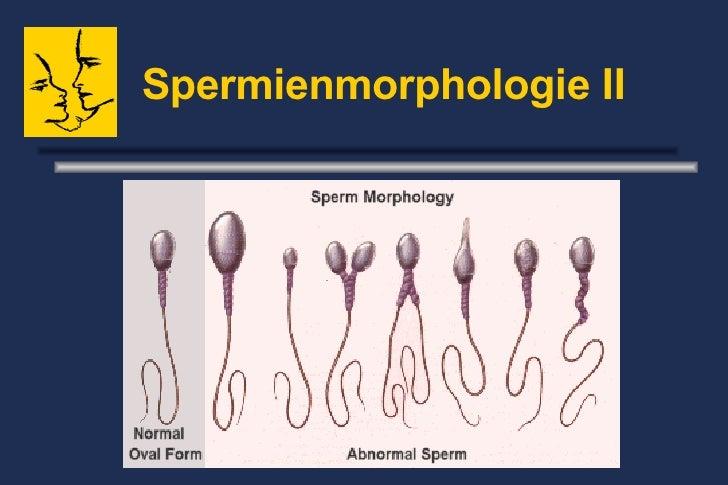 Spermienmorphologie II