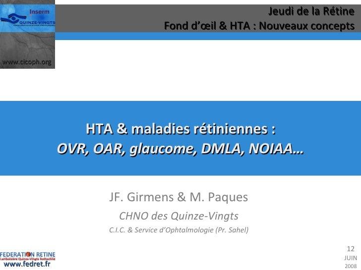 HTA & maladies rétiniennes : OVR, OAR, glaucome, DMLA, NOIAA… JF. Girmens & M. Paques CHNO des Quinze-Vingts C.I.C. & Serv...
