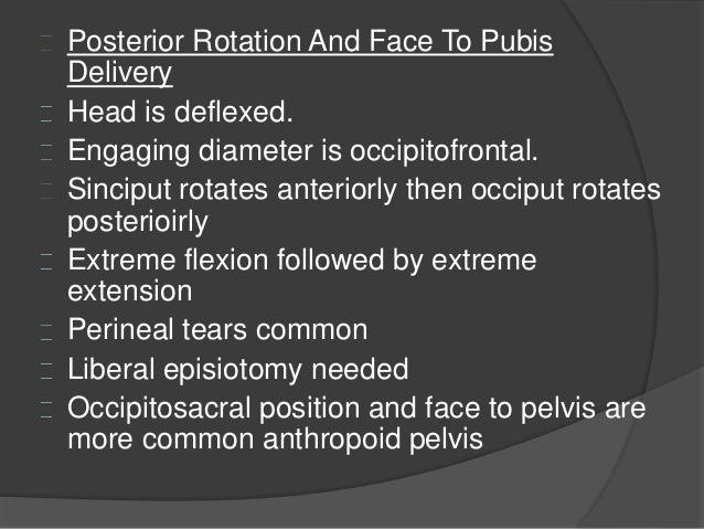 Obstetrics Malpositions And Malpresentations