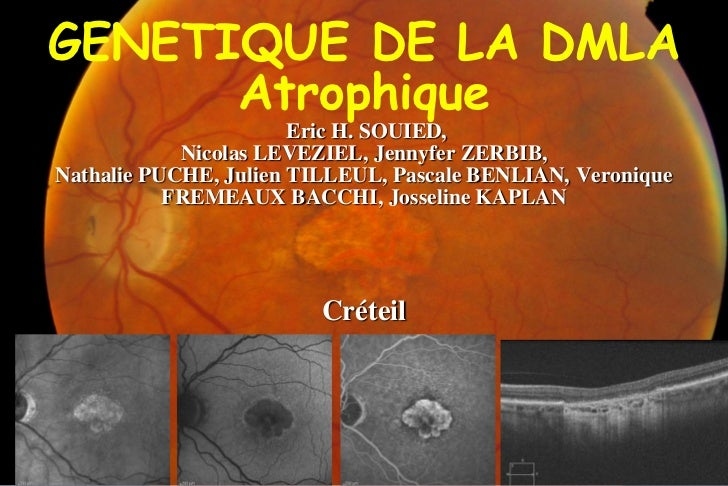 GENETIQUE DE LA DMLA      Atrophique                       Eric H. SOUIED,            Nicolas LEVEZIEL, Jennyfer ZERBIB,Na...