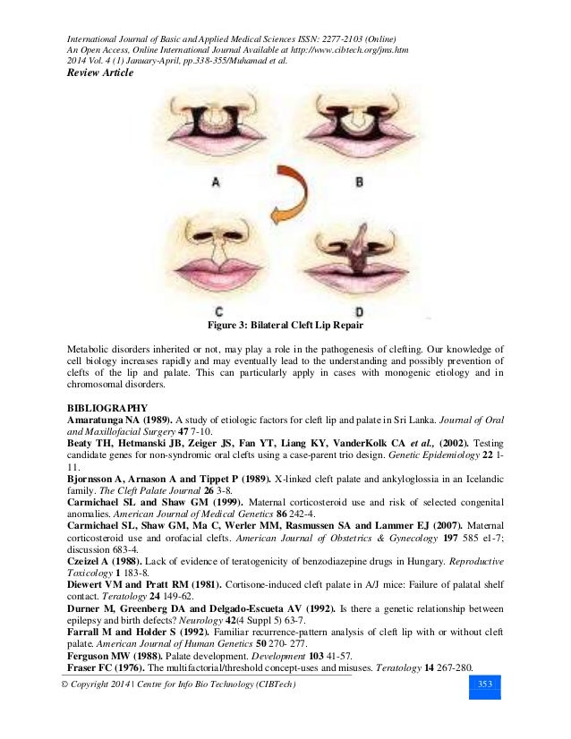 CLEFT LIP AND PALATE; A COMPREHENSIVE REVIEW
