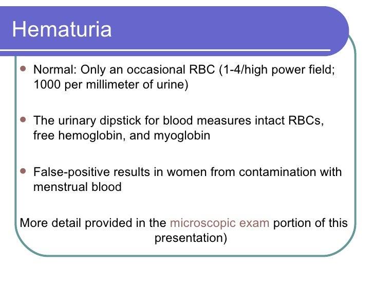 Hematuria <ul><li>Normal: Only an occasional RBC (1-4/high power field; 1000 per millimeter of urine) </li></ul><ul><li>Th...