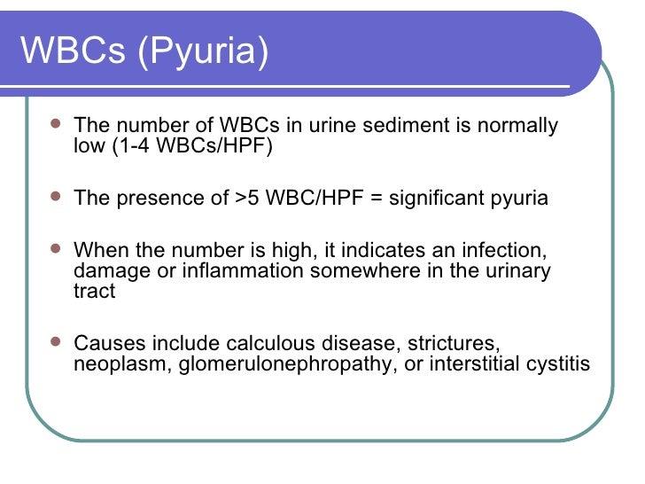 WBCs (Pyuria) <ul><li>The number of WBCs in urine sediment is normally low (1-4 WBCs/HPF) </li></ul><ul><li>The presence o...