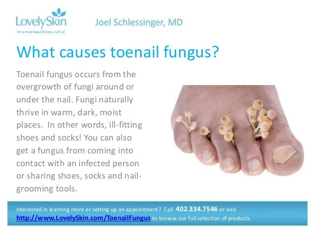 Joel Schlessinger MD FAQ - Toenail Fungus and Athlete\'s Foot