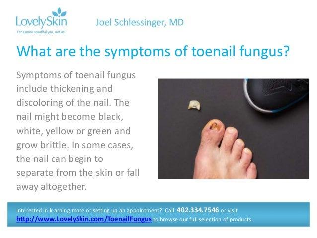 Joel schlessinger md faq toenail fungus and athletes foot 4 symptoms of toenail fungus sciox Gallery