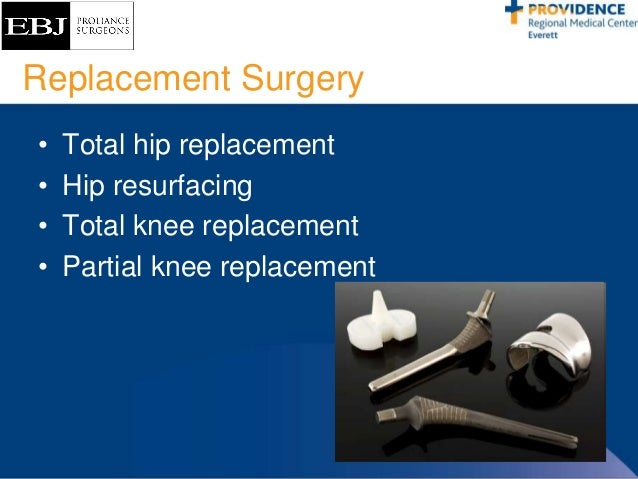 ... 32. Replacement Surgery ...