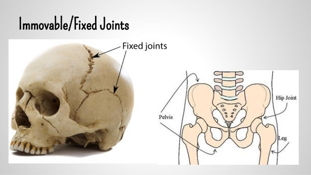 Fixed Joints Examples Images - Reverse Search