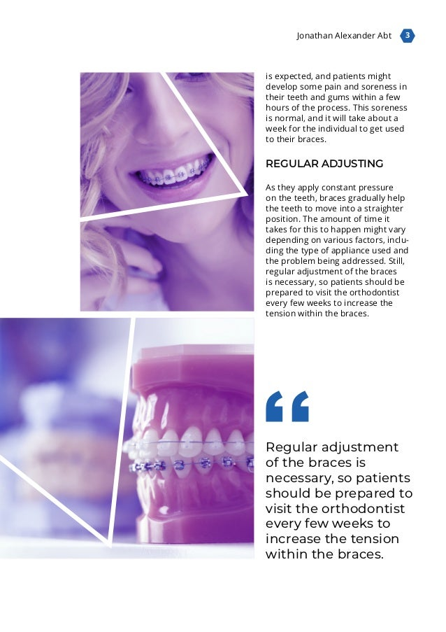 3 Jonathan Alexander Abt Regular adjustment of the braces is necessary, so patients should be prepared to visit the orthod...