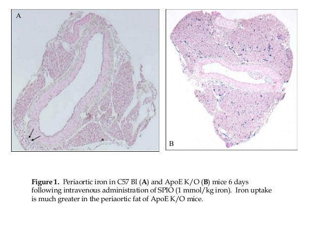 A Figure 1. Periaortic iron in C57 Bl (A) and ApoE K/O (B) mice 6 days following intravenous administration of SPIO (1 mmo...