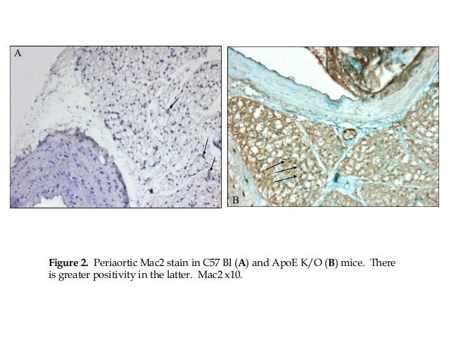A Figure 2. Periaortic Mac2 stain in C57 Bl (A) and ApoE K/O (B) mice. There is greater positivity in the latter. Mac2 x10...