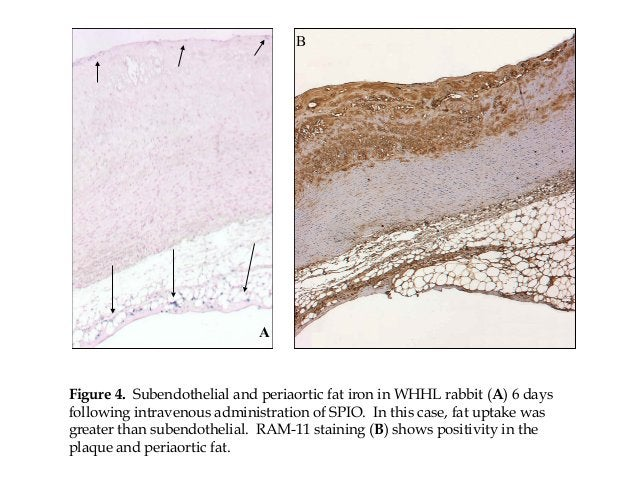 A Figure 4. Subendothelial and periaortic fat iron in WHHL rabbit (A) 6 days following intravenous administration of SPIO....