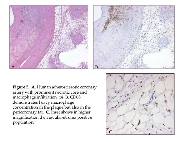 A Figure 5. A. Human atherosclerotic coronary artery with prominent necrotic core and macrophage infiltration. x4 B. CD68 ...