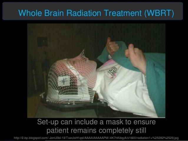 Brain Metastasis Cancer