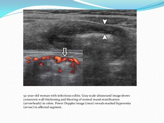 Ultrasound imaging of bowel pathology for Colonic mural thickening