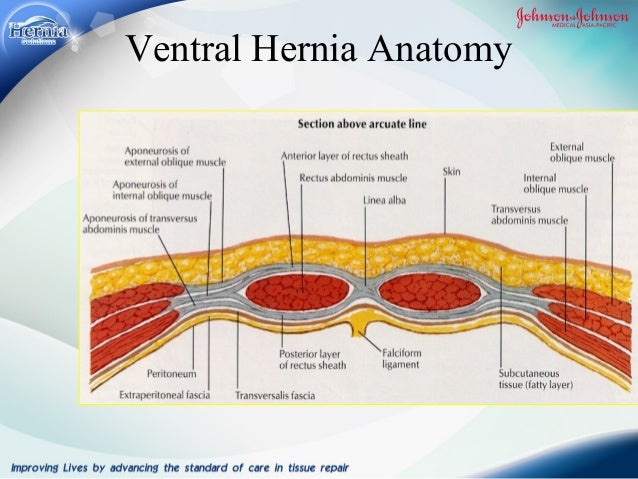 MY JOURNEY WITH HERNIA SURGERY