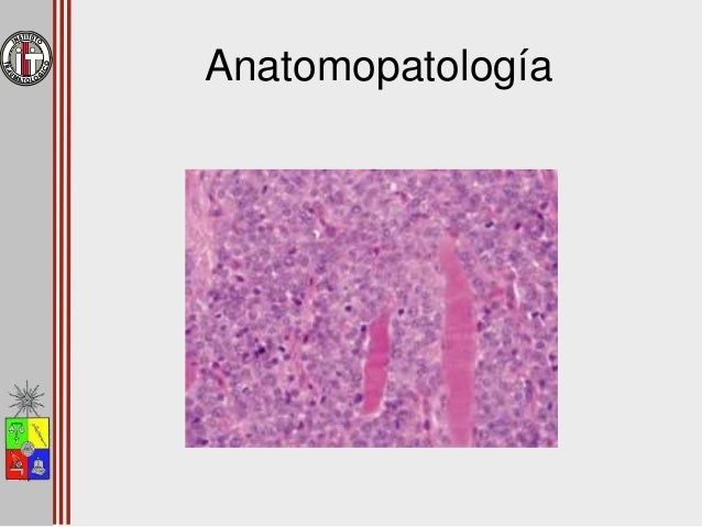 Etapificación • Enekin – TAC tórax – Cintigrama óseo – PET?