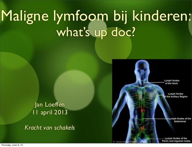 Maligne lymfoom bij kinderen: what's up doc? Jan Loeffen 11 april 2013 Kracht van schakels Thursday, June 6, 13