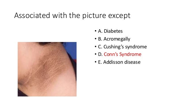 Associated with the picture except • A. Diabetes • B. Acromegally • C. Cushing's syndrome • D. Conn's Syndrome • E. Addiss...