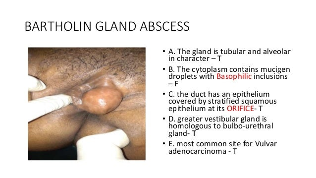 BARTHOLIN GLAND ABSCESS • A. The gland is tubular and alveolar in character – T • B. The cytoplasm contains mucigen drople...