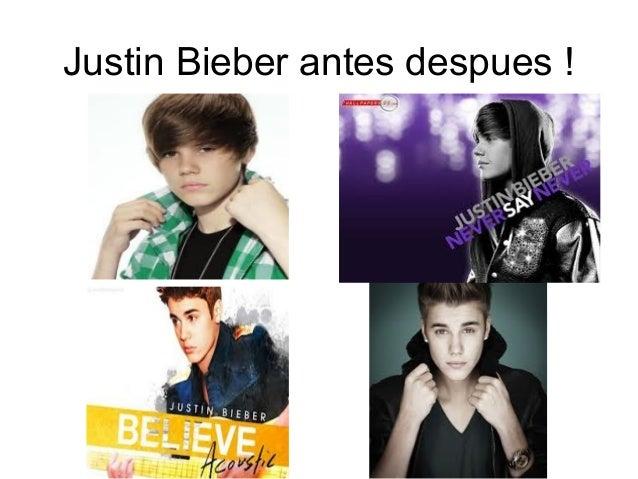 Justin Bieber antes despues !
