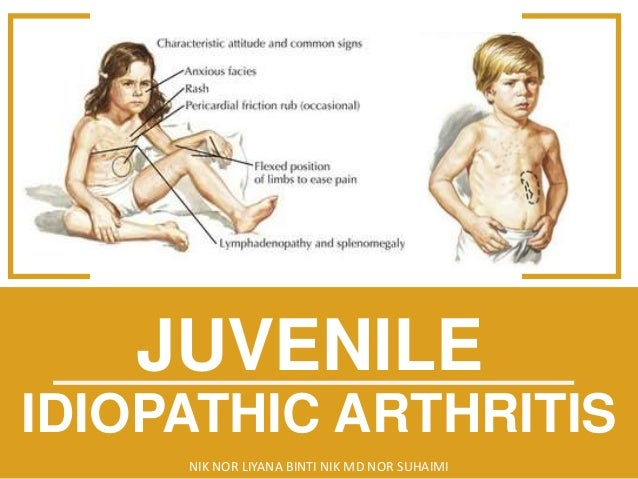 how many are affected by juvenile arthritis