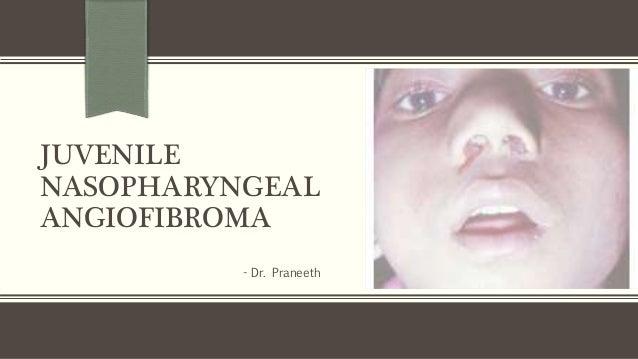 JUVENILE NASOPHARYNGEAL ANGIOFIBROMA - Dr. Praneeth