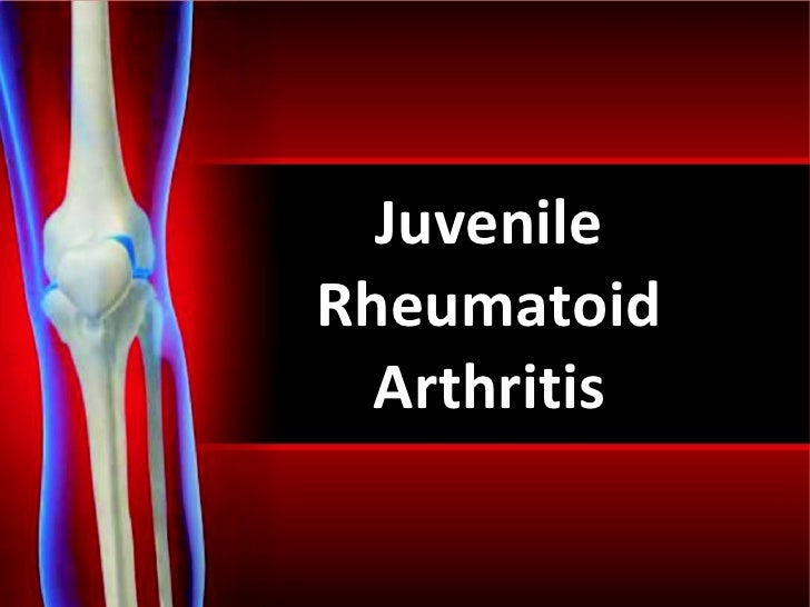 an informative paper about some cases of juvenile rheumatoid arthritis Rheumatoid arthritis disorder - arthritis is a descriptive term applied to more than 100 rheumatic disorders (porth, 2011) arthritis is a disease that affects the joints, the tissues which surround the joint and other connective tissues (centers for disease control and prevention, 2011.