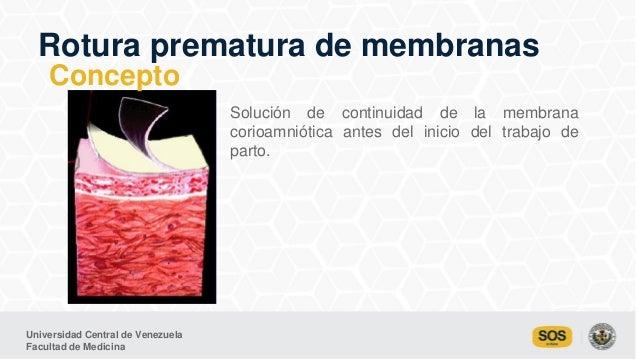 Universidad Central de Venezuela Facultad de Medicina Rotura prematura de membranas Solución de continuidad de la membrana...