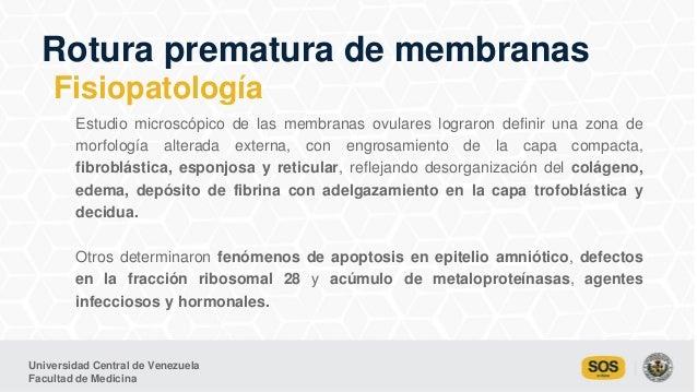 Universidad Central de Venezuela Facultad de Medicina Estudio microscópico de las membranas ovulares lograron definir una ...