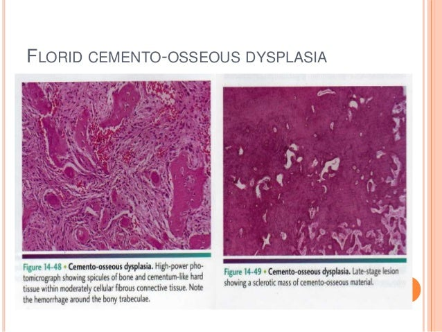 Focal cemento osseous dysplasia histology