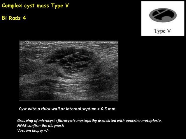 Jy seror breast cyst benign or malignant jfim hanoi 2015