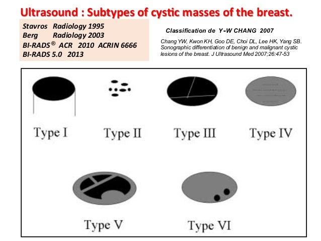 Breast cyst growth