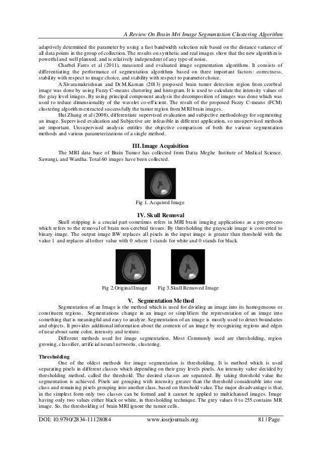 A Review On Brain Mri Image Segmentation Clustering Algorithm DOI: 10.9790/2834-11128084 www.iosrjournals.org 81   Page ad...