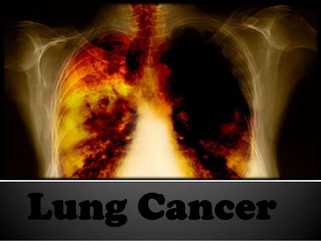    uncontrolled cell growth   most common cause of cancer    related deaths.   About 1.3 million people die    each year.