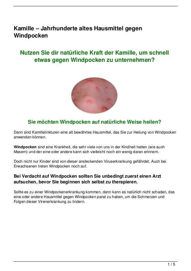 Kamille – Jahrhunderte altes Hausmittel gegenWindpocken   Nutzen Sie dir natürliche Kraft der Kamille, um schnell        e...