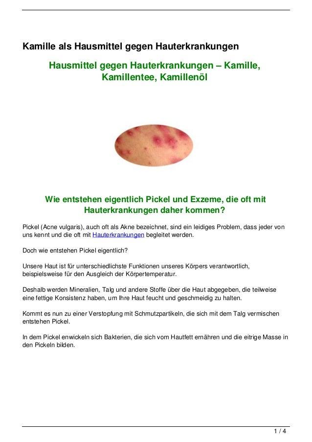 Kamille als Hausmittel gegen Hauterkrankungen         Hausmittel gegen Hauterkrankungen – Kamille,                    Kami...