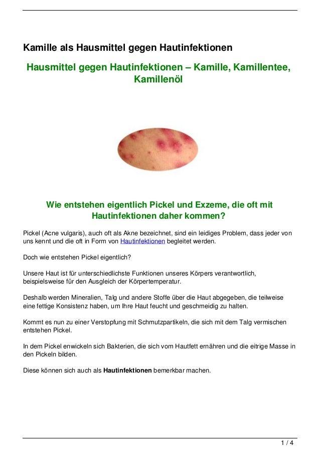 Kamille als Hausmittel gegen Hautinfektionen Hausmittel gegen Hautinfektionen – Kamille, Kamillentee,                     ...