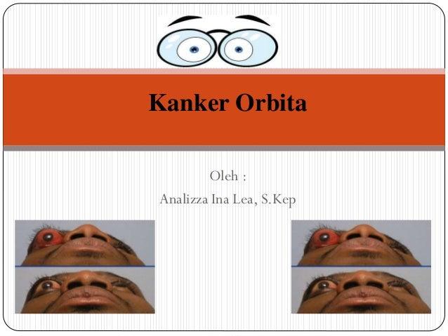 Oleh : Analizza Ina Lea, S.Kep Kanker Orbita