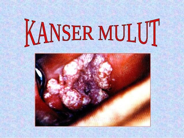 APA ITU KANSER               MULUT Kanser mulut adalah satu keadaan di mana sel-sel dari tisu bahagian mulut tumbuh secar...