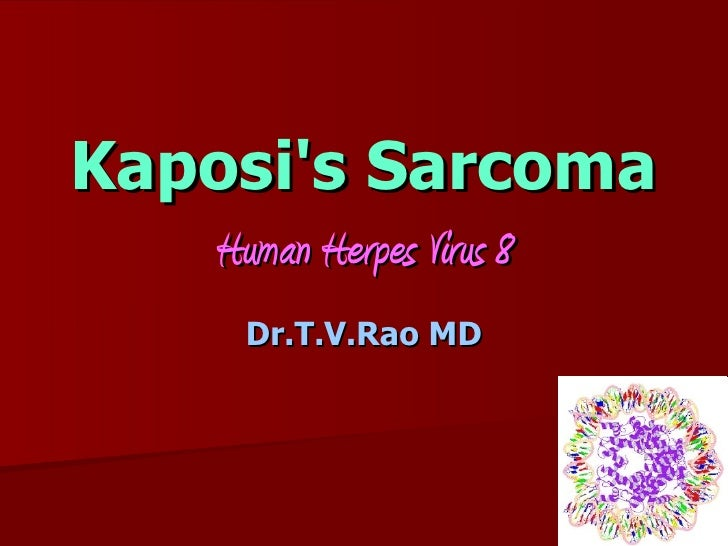 the clinical description of human herpes virus 8 and kaposis sarcoma Infection is associated with human herpes virus 8 or kaposi's sarcoma-associated herpes virus human endothelial cells are changed.