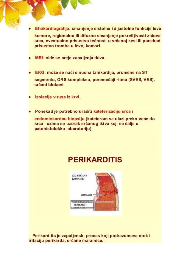  Ehokardiografija: smanjenje sistolne i dijastolne funkcije leve komore, regionalno ili difuzno smanjenje pokretljivosti ...