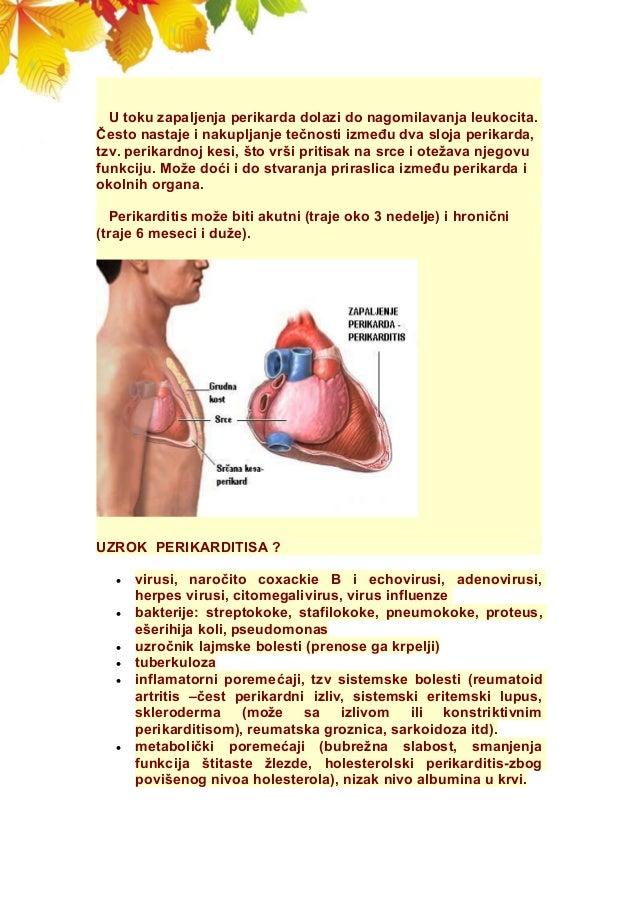 U toku zapaljenja perikarda dolazi do nagomilavanja leukocita. Često nastaje i nakupljanje tečnosti između dva sloja perik...