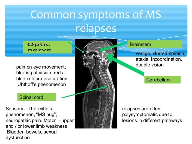relapse management in multiple sclerosis, Skeleton