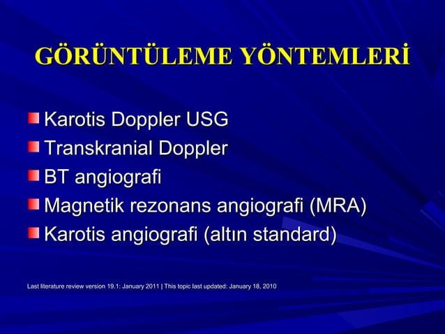 GÖRÜNTÜLEME YÖNTEMLERİGÖRÜNTÜLEME YÖNTEMLERİ Karotis Doppler USGKarotis Doppler USG Transkranial DopplerTranskranial Doppl...