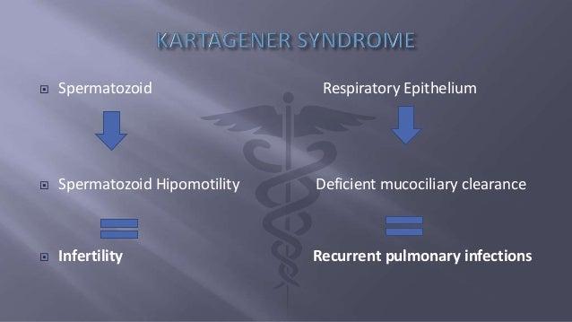 Kartagener Syndrome Usmle Step 1