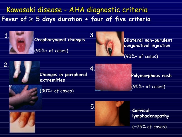 Ppt what is kawasaki disease? Powerpoint presentation id:2569620.