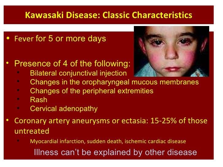 Kawasaki disease (kd) 2.
