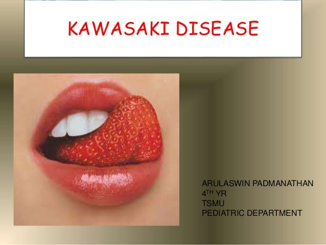 kawasaki disease Kawasaki disease is an acute, systemic vasculitis that predominantly affects patients younger than five years it represents the most prominent cause of acquired coronary artery disease in childhood.