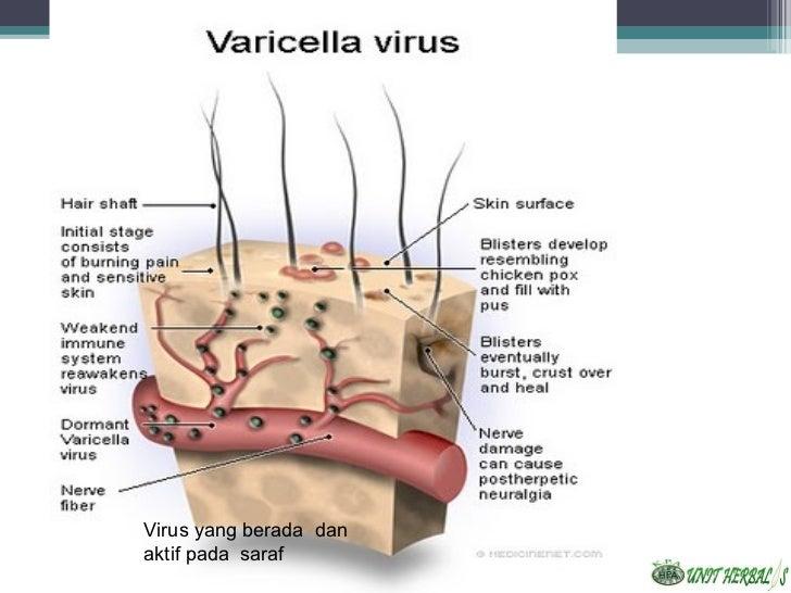 Virus yang berada danaktif pada saraf