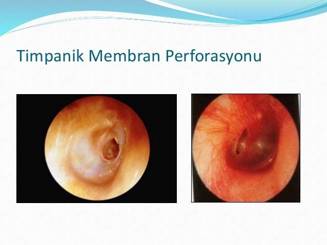 TM Perforasyonu  Enfeksiyon, barotravma, travma ve nadiren şimşek çakmaları  Akut gelişen ağrı, işitme kaybı, otoraji gö...